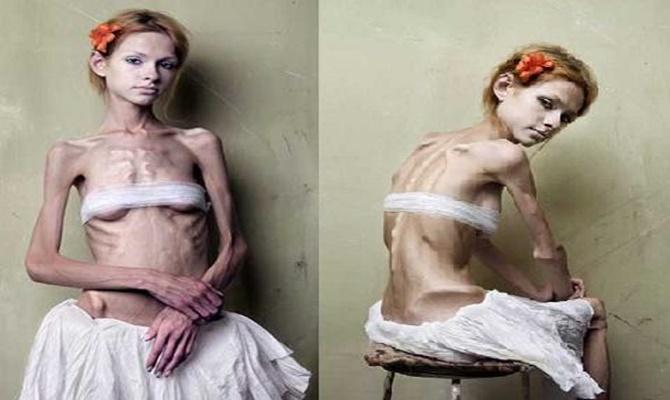 Anorexia_Nervosa-