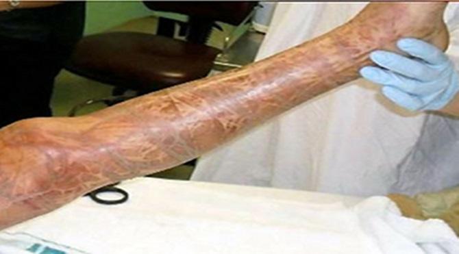 Kutu denizanasının saldırısından kurtulan 10 yaşındaki Rachael Shardlow'un saldırı sonrası bacağında yarattığı etki