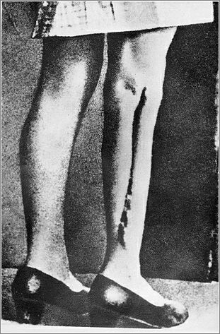 Ravensbruck, Germany, Scars on a leg of a woman after medical experiments