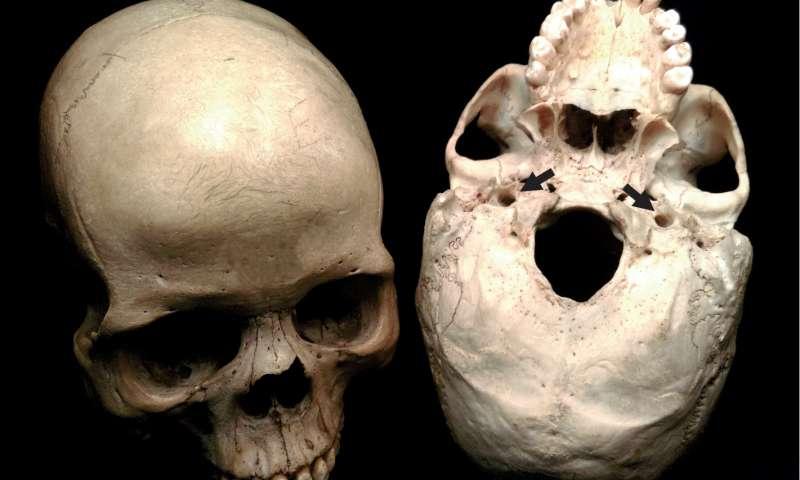 Bu kafatasları, beynin neredeyse tamamını destekleyen iç atardamarlar için açılmış iki adet deliği gösterir. Bu deliklerin büyüklükleri, beyin metabolizma hızı ve idrak etme yeteneği ile ilişkili olan kan dolaşım hızını açığa vurur. Kaynak: The Raymond Dart Collection of Human Skeletons, School of Anatomical Sciences, Faculty of Health Sciences, University of the Witwatersrand.
